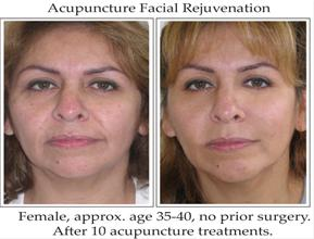 Before & after photos of cosmetic acupuncture facial rejuvenation
