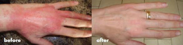 Before & after photos of a  woman's hand after  the food intolerance was identified.